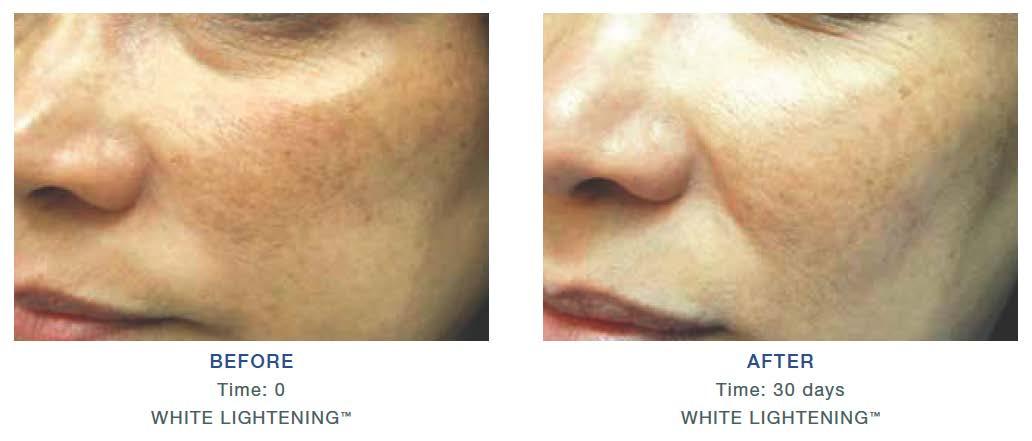 iS Clinical White Lightening Serum的圖片搜尋結果