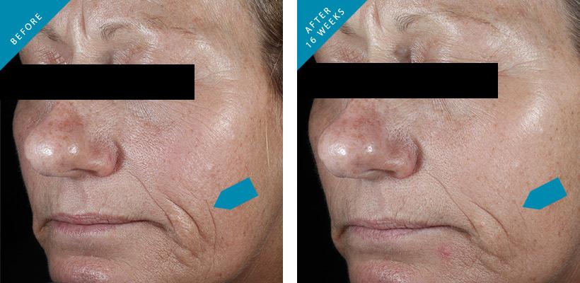 Skinceuticals Ce Ferulic 30ml 1fl Oz