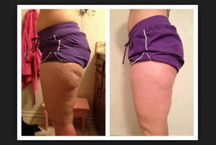 Does forskolin help with cellulite
